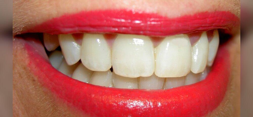 Ära riku oma naeratust ära! Viis soovitust silmipimestavalt kauni naeratuse heaks