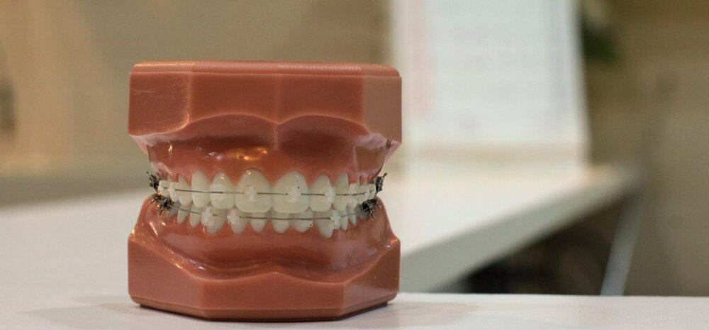 Huvitav teada: kuidas stress su hambad auklikuks kulutab