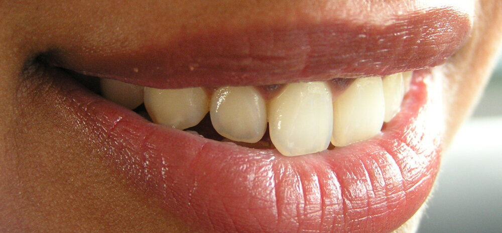 Hammaste tervis: pärilikud hambumuse probleemid — ravida või mitte?