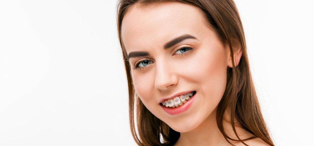 Ortodont vastab: mis võimalused on täiskasvanud inimesel oma hambarivi sirgeks saada?
