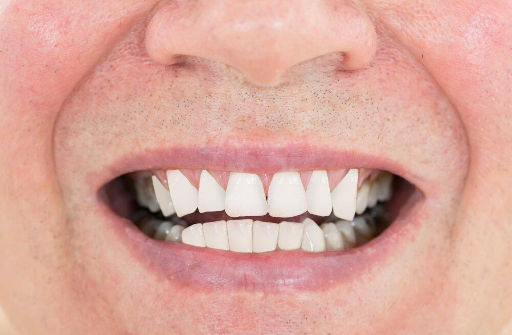 Suuhingamine tekitab rohkelt hambaprobleeme! Mis seda põhjustab ja kuidas ravida?