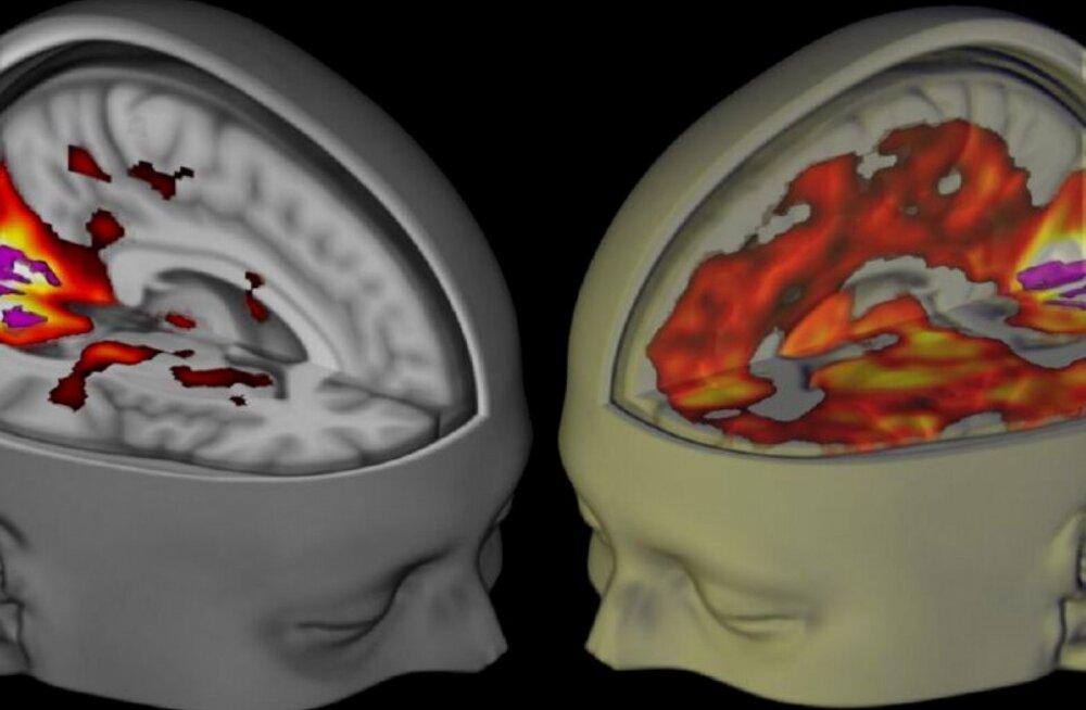 Teadlased uurisid LSD mõjusid esmakordselt ajuskanneritega