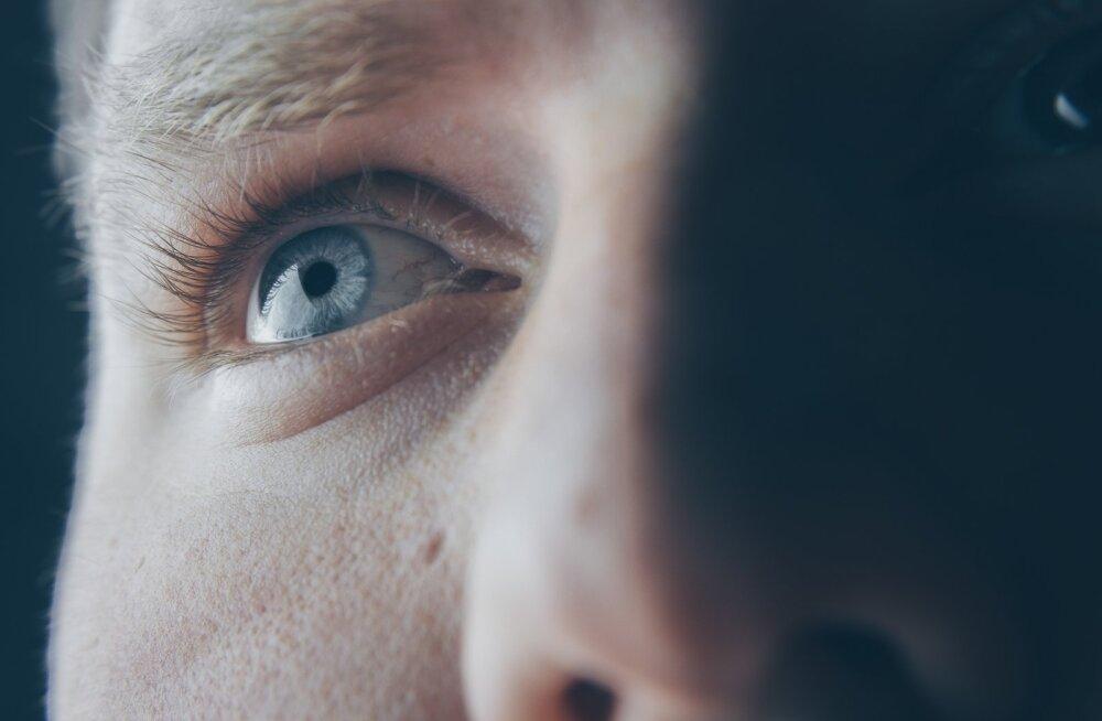 """Silmaarstide selts hoiatab: silmade ravimine MMS- ja DMSO-nimeliste """"imerohtudega"""" võib lõppeda püsivate silmakahjustustega"""