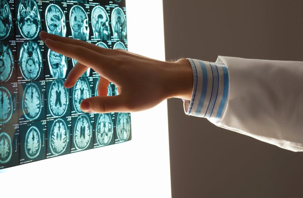 Hollandi teadlased leidsid inimkehast uue elundi