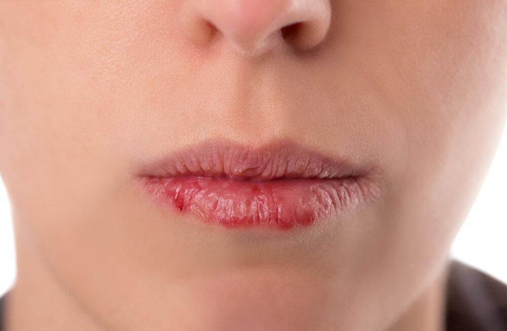 Huuled lõhenevad ja tunned suurt väsimust? Veepuudus organismis on ohtlik ja kõik need sümptomid viitavad sellele