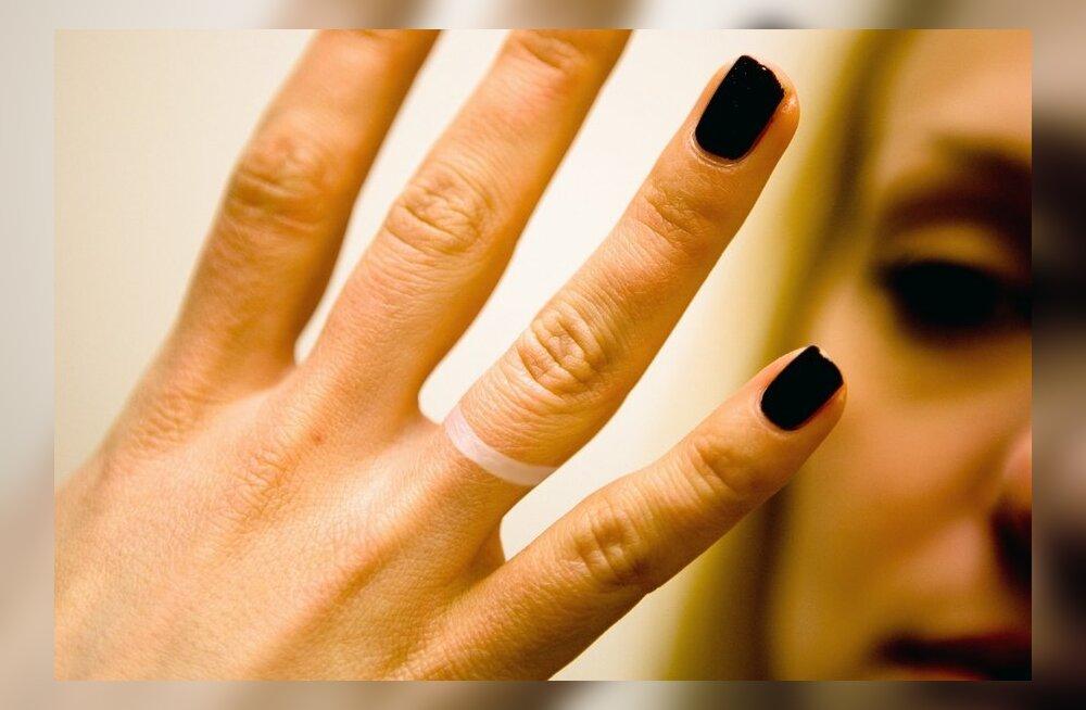 Kas sõrmede naksutamine on ohtlik?