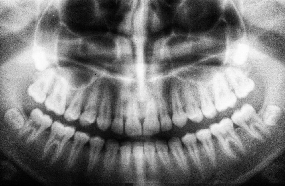 Hambaarst õpetab: mida teha, kui hammas on trauma tõttu katki läinud või suust välja tulnud