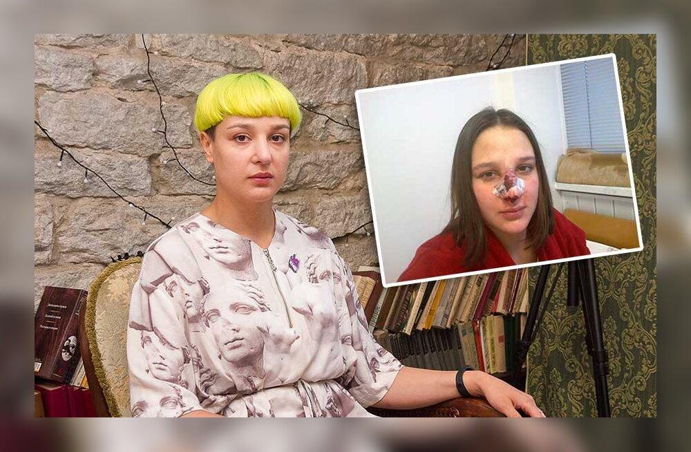 После бесплатных операций в Эстонии девушке собирали нос в России буквально по частям