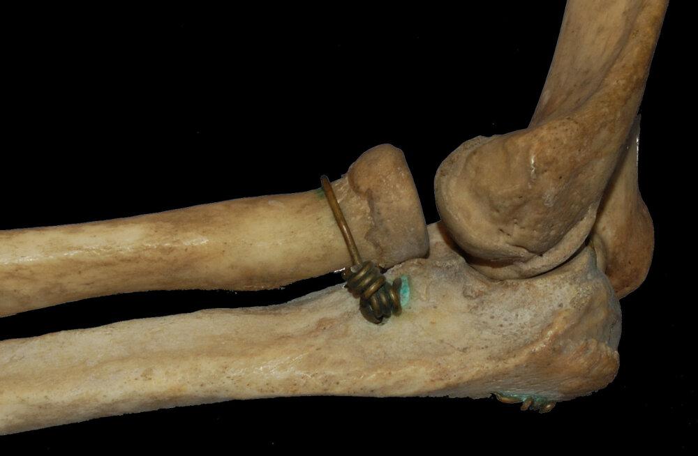 Inimese luustik muutus umbes 12 000 aastat tagasi lühikese aja jooksul palju kergemaks