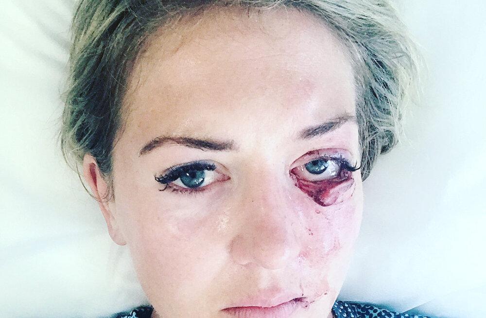 FOTO   Rootsi naispoksija oleks telesõus saadud võika silmavigastuse tõttu peaaegu nägemise kaotanud
