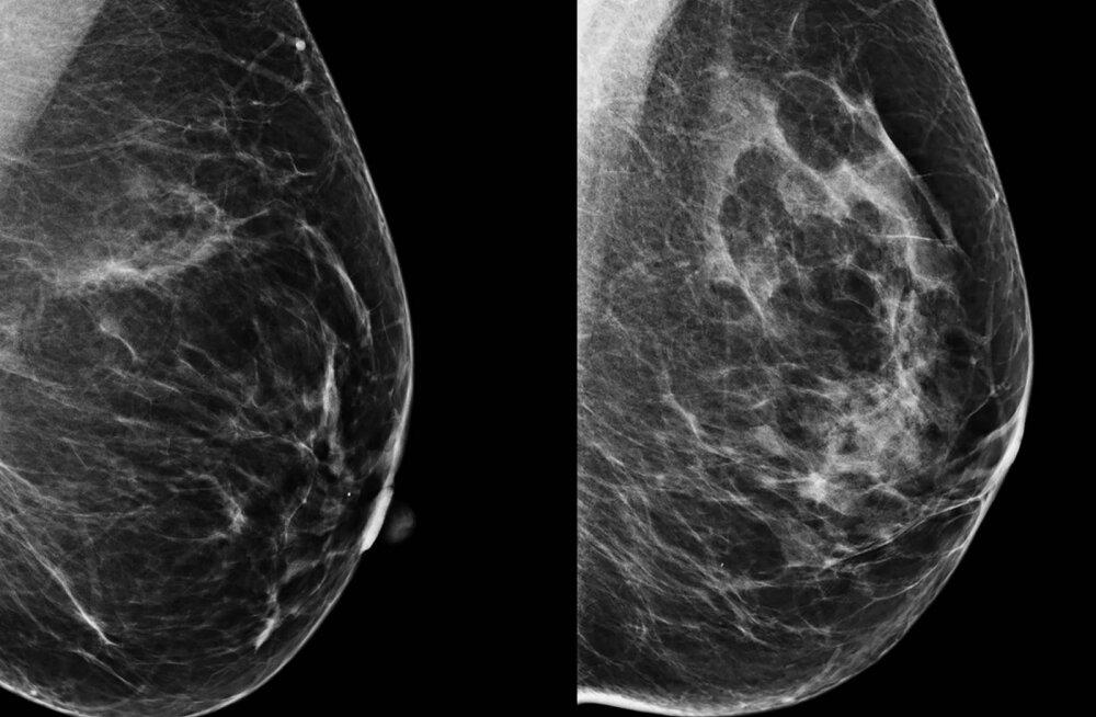 Tehisintellekt aitab rinnavähki avastada