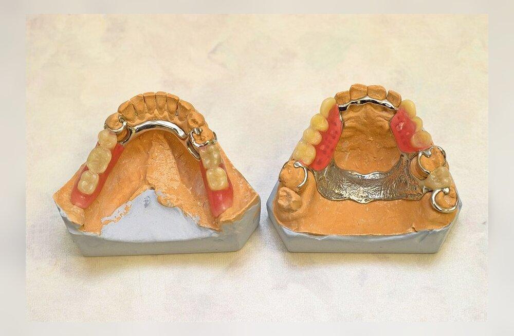 Kuidas taotleda hambaravihüvitist?