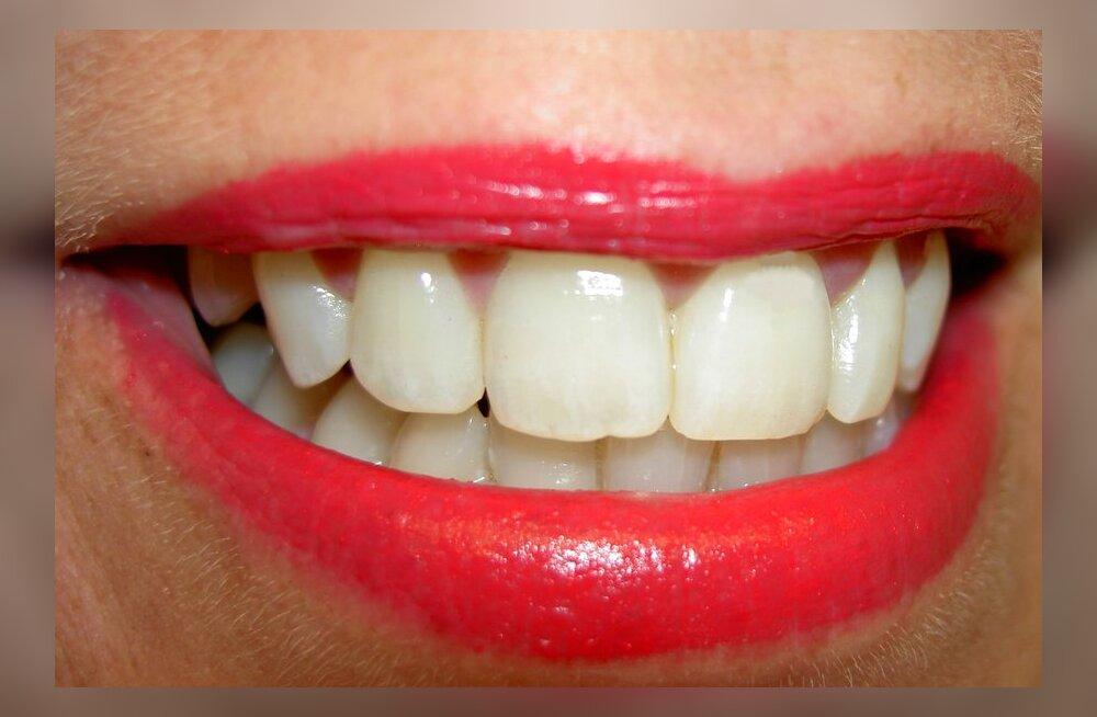 Kas kasutada suuvett? Milline on kosmeetiline ja terapeutiline suuvesi?