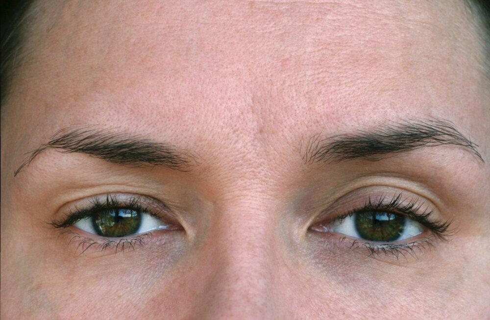 Kui su silmad on kogu aeg väsinud, siis proovi neid tõhusaid harjutusi, et silmalihaseid tugevdada