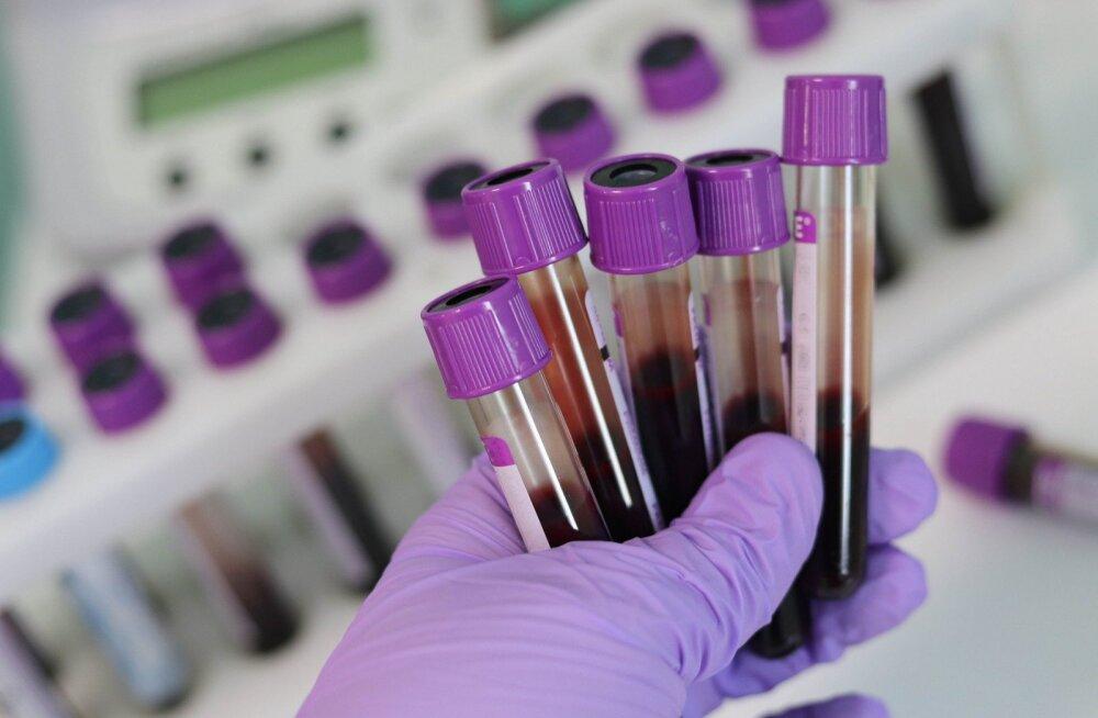 Uudne vereanalüüs tuvastab vähktõbe isegi neli aastat enne haigustunnuste ilmnemist