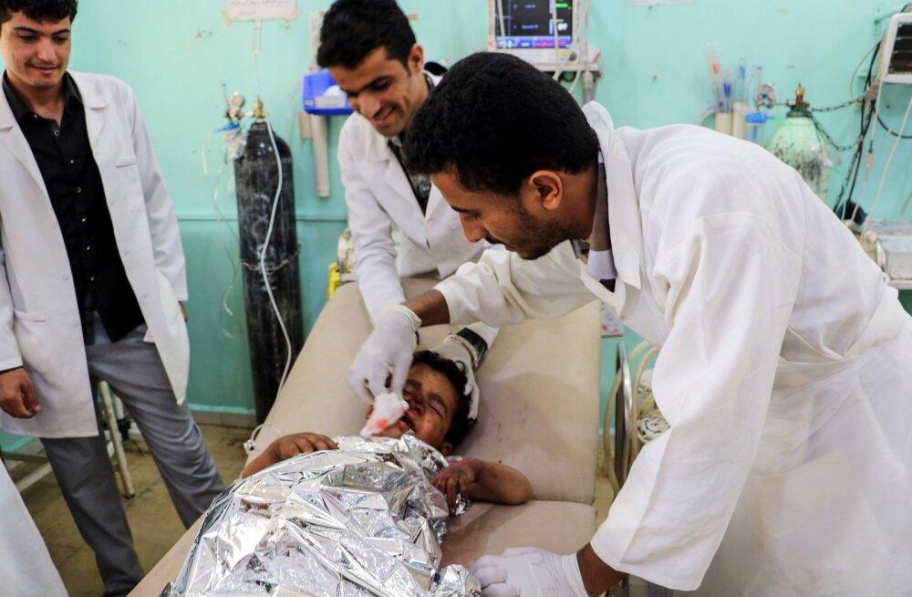 Punane Rist: Jeemenis said rünnakus bussile surma ja viga kümned lapsed