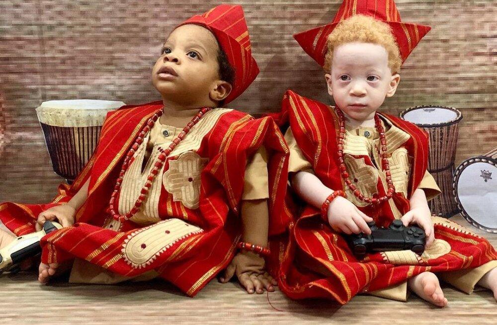 Жительница Нигерии родила близнецов с разным цветом кожи