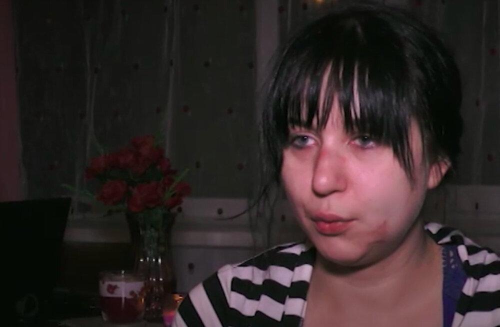 TOP 14 | Sinistest silmadest murtud luudeni ehk kodumaiste staaride kõige rängemad õnnetused