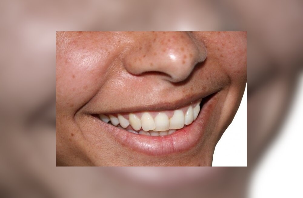 Уход за зубами: 5 вещей, которые вы делали неправильно