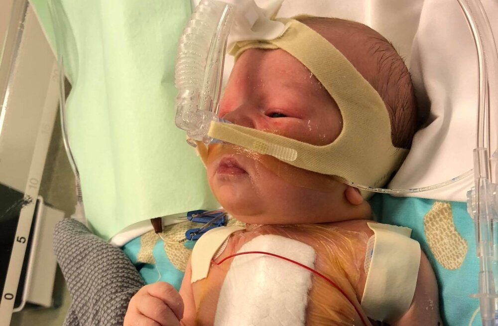 Südamerikkega sündinud Georgi pere palub heade inimeste abi, et lapse elu päästa