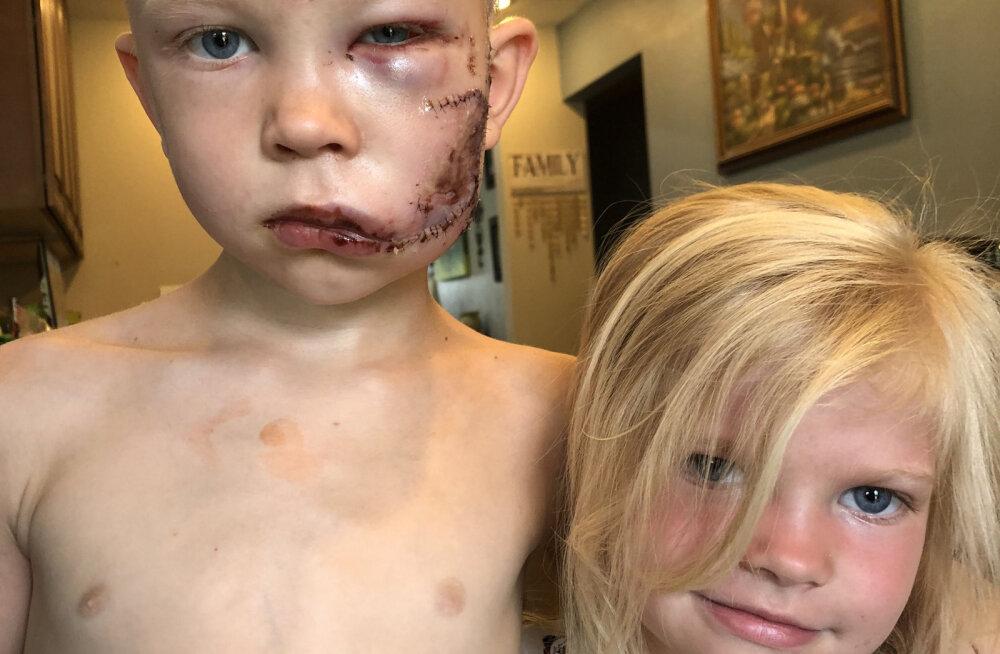 """""""Если кто-то должен был умереть, я думал, что это должен быть я"""". Как живет 6-летний мальчик, спасший сестру от разъяренной собаки"""