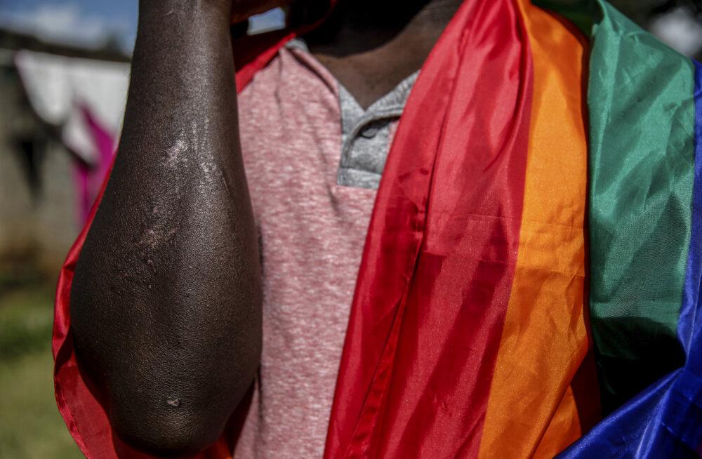 Uganda mees näitab arme, mis meenutavad rünnakut. Pilt on illustreeriv.