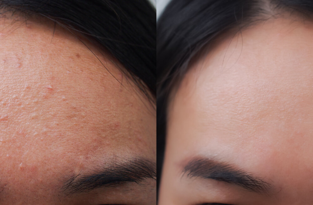 Neid lihtsaid ja elementaarseid soovitusi järgides hoiad naha vistrikest puhtana