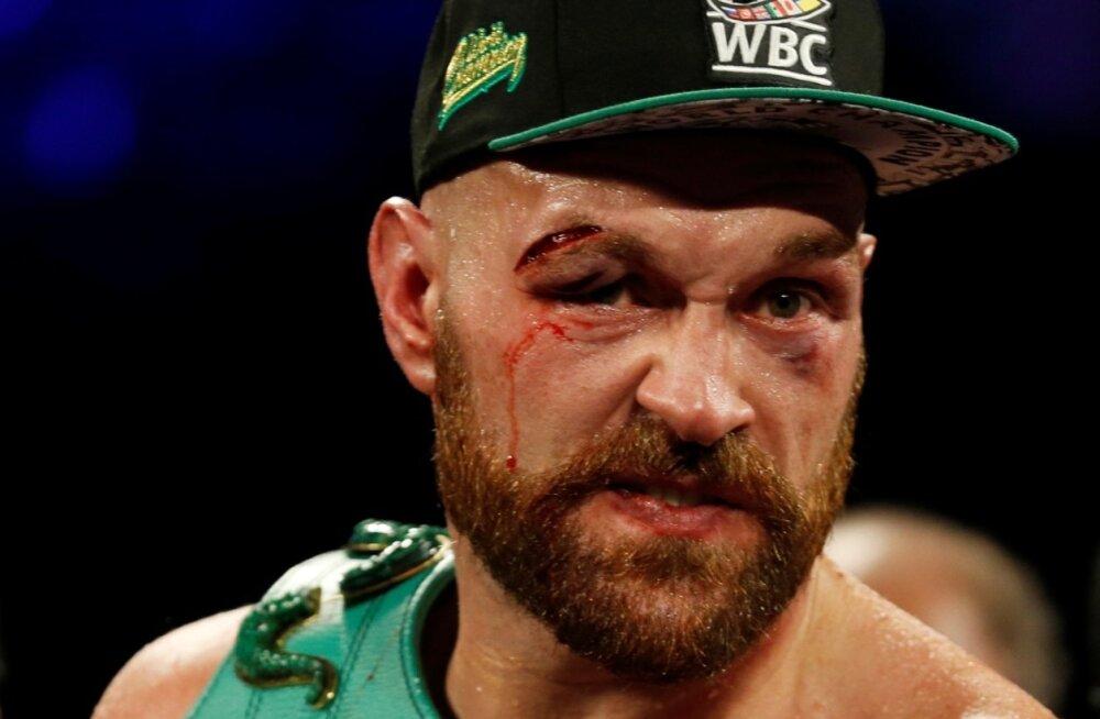 Tyson Fury oskab show'd teha.