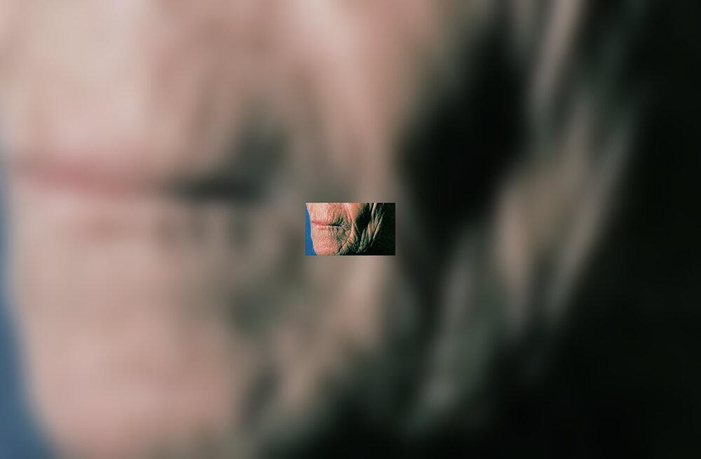 N fotovananemine