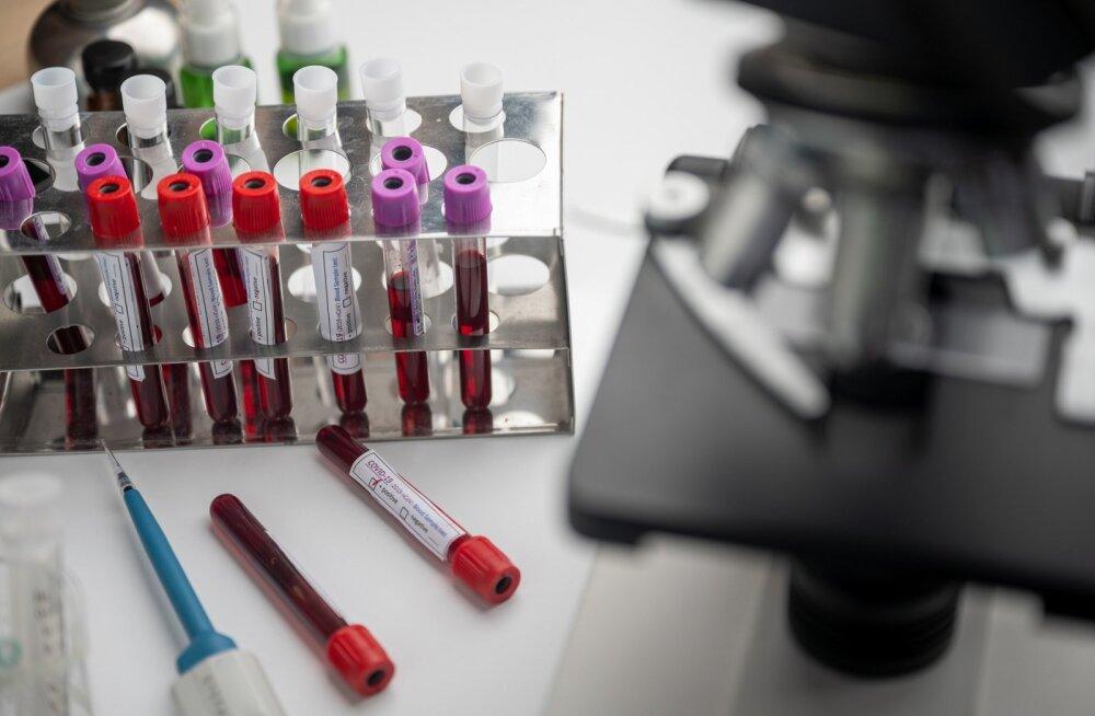 Российская вакцина от коронавируса, которую ученые, возможно, тестируют на себе, не достанется сразу всем