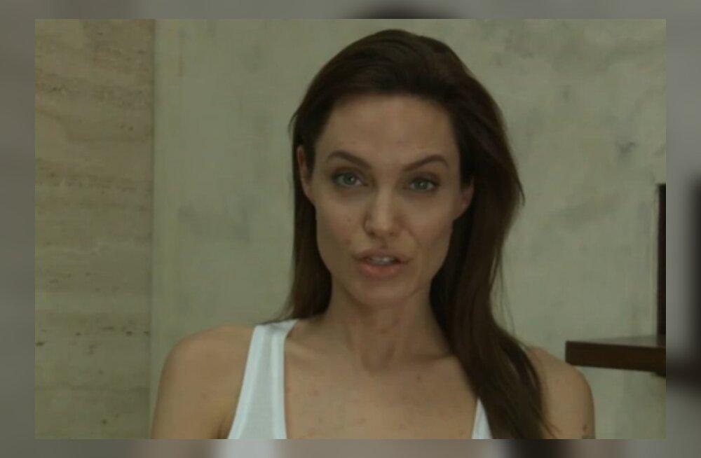 FOTOD: Sa ei ole ainukene! Angelina Jolie'l on tuulerõuged