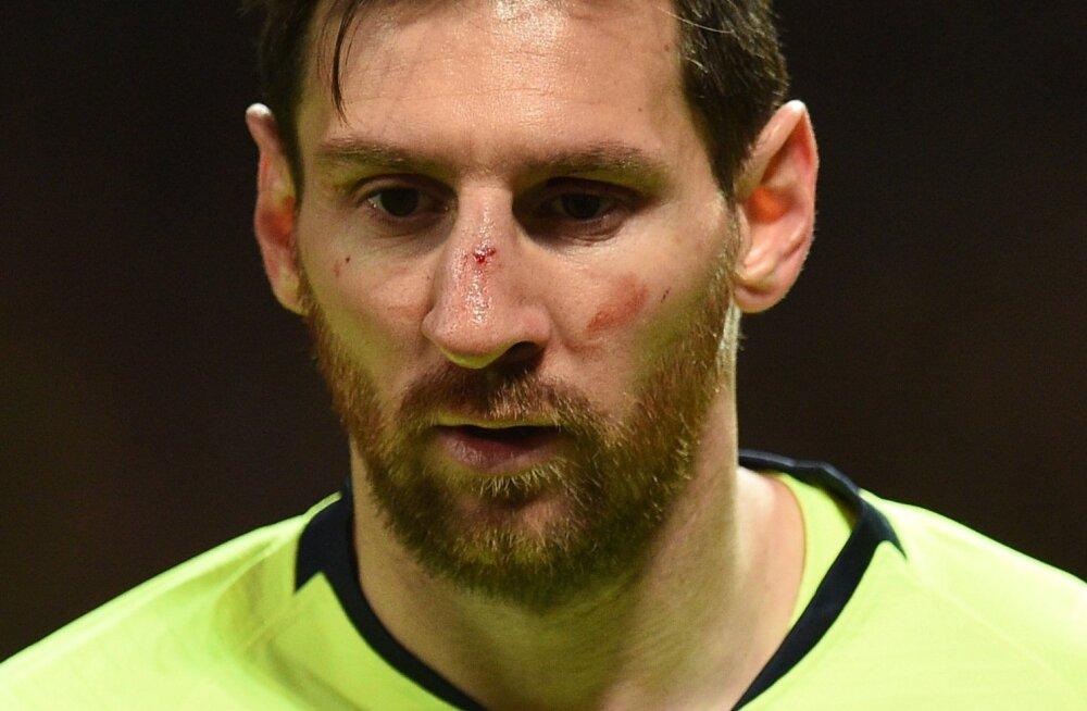 United suutis Lionel Messil küll nina veriseks lüüa, kuid Barcelona lahkus Manchesterist siiski võiduga.
