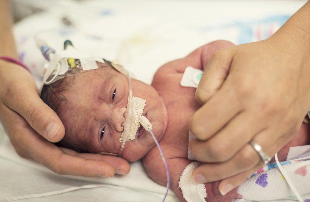 Läkaköha on väga nakkav ja eriti ohtlik just imikutele