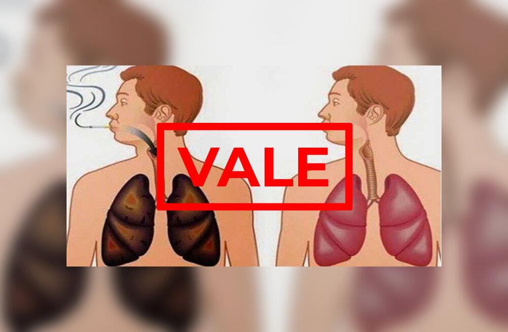 Sibulajook puhastab ka kõige kõvema suitsumehe kopsud? Pigem mitte