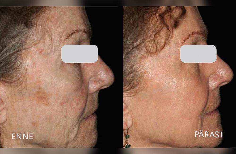 Laserlihvimine – efektiivseim naha noorendamise meetod