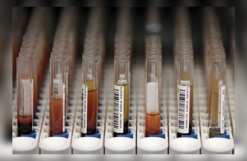 Doping, dopinguproovid
