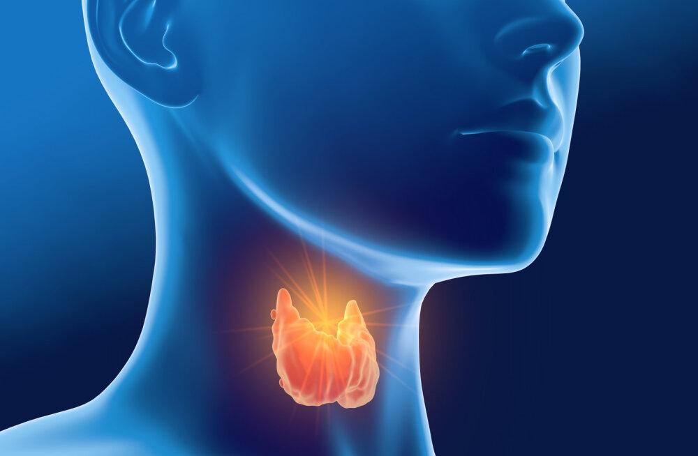 Tee selgeks: need sümptomid viitavad kilpnäärmehaigustele