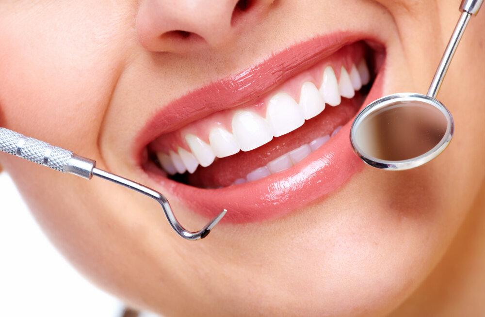 Veatu ja säravvalge naeratus - kasulikud iluprotseduurid hambakliinikus