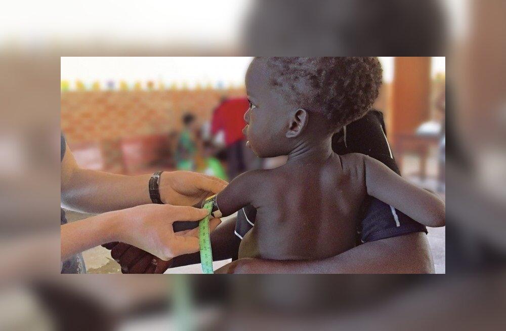 Hoolikalt valitud bakterikooslus võiks aidata näljahäda käes kannatavaid lapsi