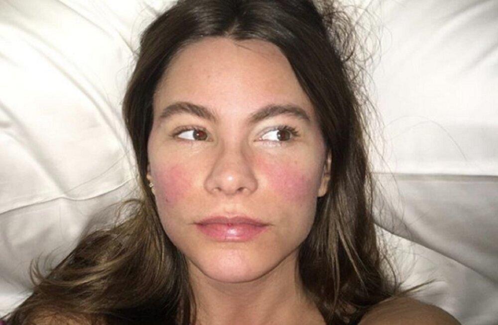 FOTOD | Hollywoodi naisnäitlejad näitavad, millised nad ilma meigita välja näevad