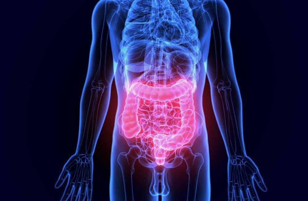 Oluline teada! Mida saab igaüks ise ära teha, et oma soolestiku mikrobioomi tasakaalus hoida?