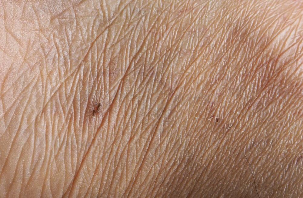 On olemas üks kehapiirkond, mis annab esimeste hulgas märku naha vananemisest