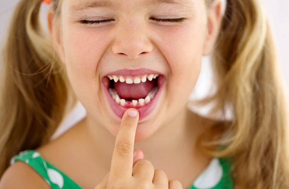 Ранняя потеря молочных зубов может вызвать проблемы в развитии детей