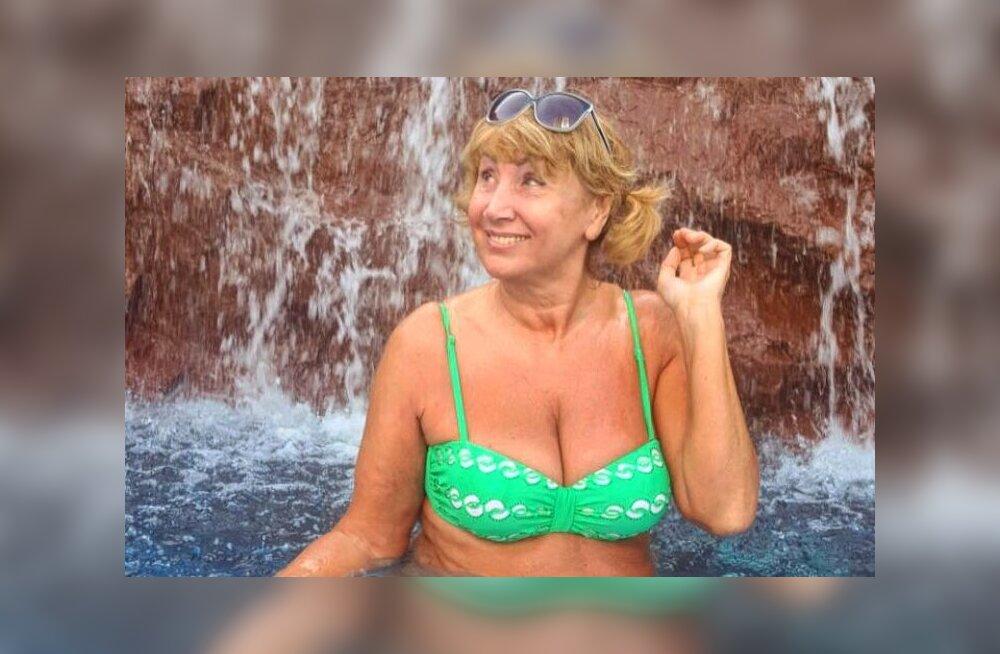 Лариса Копенкина решилась на пластику шеи