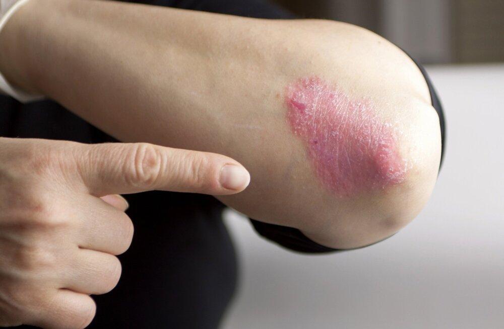 Psoriaas ilmneb sagedasti kätel ja küünarnukil.