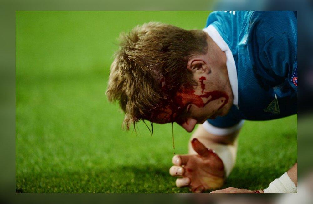 FOTOD JA VIDEO: Nõrganärvilistele ei soovita! Lewandowski põlv tekitas Zeniidi kaitsjale verise peahaava