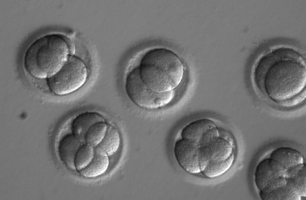Vene bioloog teatas, et aitab ilmale tuua veel ühed geenmuundatud beebid