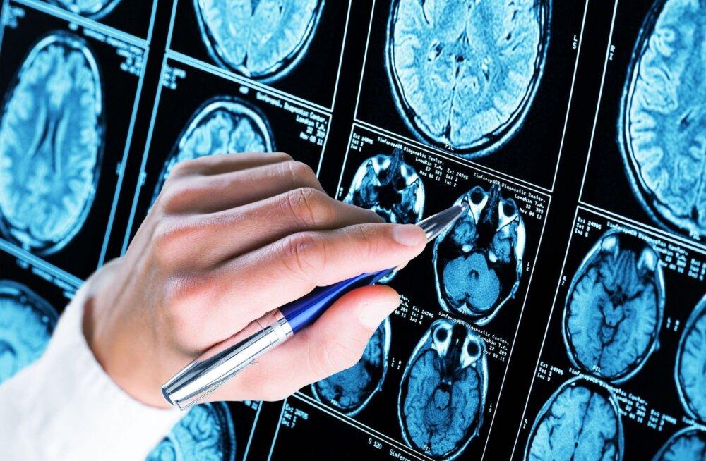 Päevane unisus võib olla Alzheimeri esimene sümptom