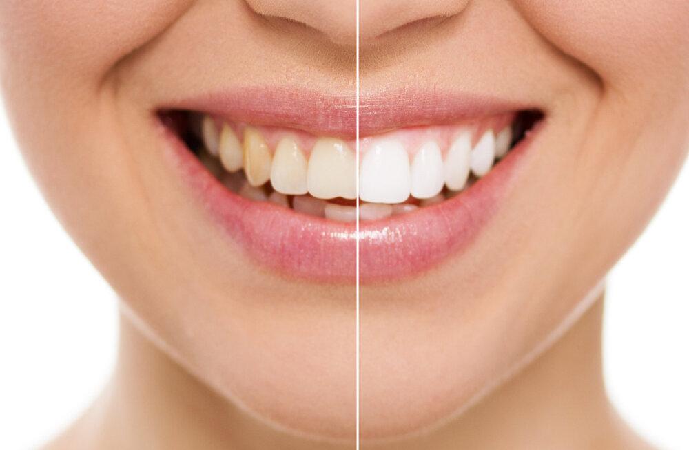 Imesegu, mis valgendab hambaid ja ravib igemehaigusi