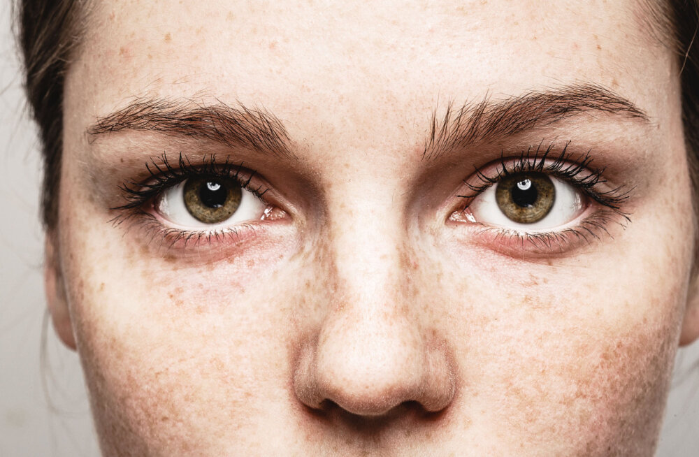 Optometrist: silmade tervist mõjutavad need kaks faktorit